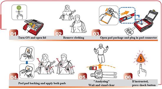 I-PAD Automated External Defibrillator